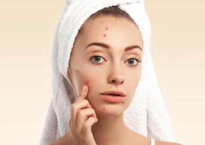 Лечебна терапия за проблемна и акнеична кожа